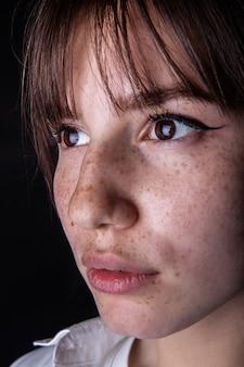 Gros plan d'un visage de jeune fille avec des taches de rousseur