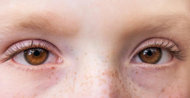 Gros plan des yeux expressifs d'une jeune fille avec des taches de rousseur