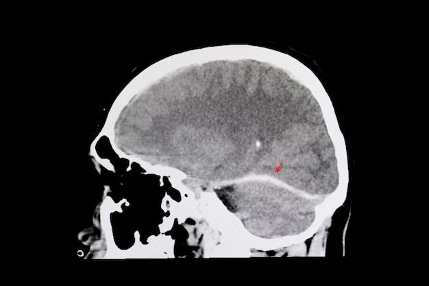 Hémorragie intracérébrale