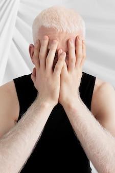 Homme albinos couvrant son visage