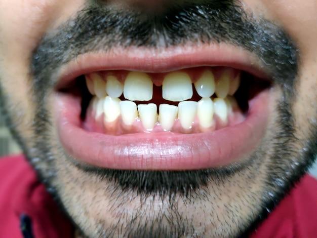 Un homme avec une barbe montre ses dents, il a un écart entre les dents.