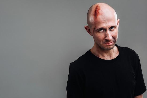 Un homme battu dans un t-shirt noir se dresse sur un mur gris