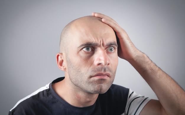Homme chauve caucasien au bureau. notion de perte de cheveux
