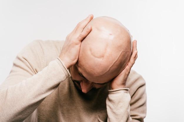 Homme chauve stressé et déprimé luttant pour la vie, tumeur au cerveau