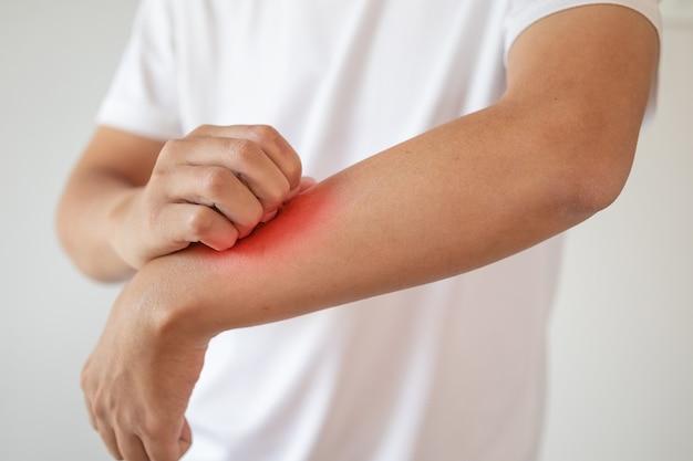 Homme démangeaisons et se gratter le bras de la dermatite eczéma démangeaisons