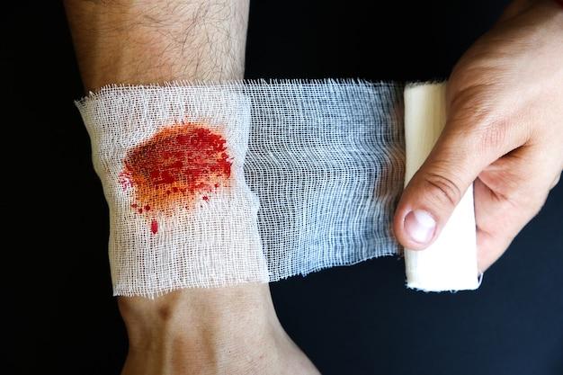 L'homme met le pansement sur la plaie. blessure hémorragique.