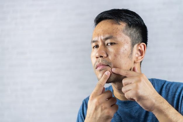 L'homme pointant l'acné enflammée se produit sur son visage.
