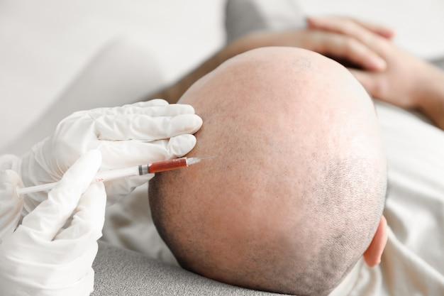 Homme avec problème de perte de cheveux recevant une injection en clinique