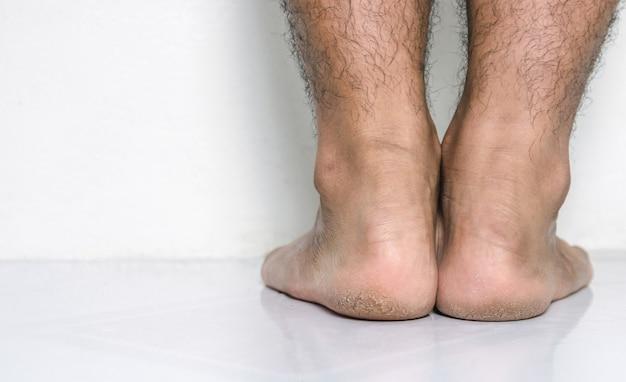 Hommes une peau de pieds talons fissurés