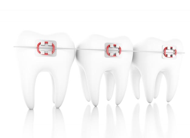 Illustration 3d. dent avec des accolades. concept de soins dentaires. fond blanc isolé