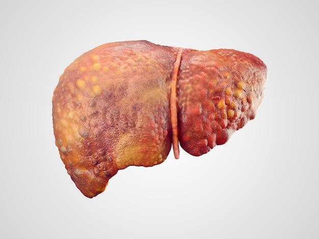 Illustration réaliste de la cirrhose du foie humain