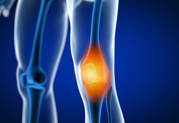Illustration de rendu 3d d'un genou douloureux