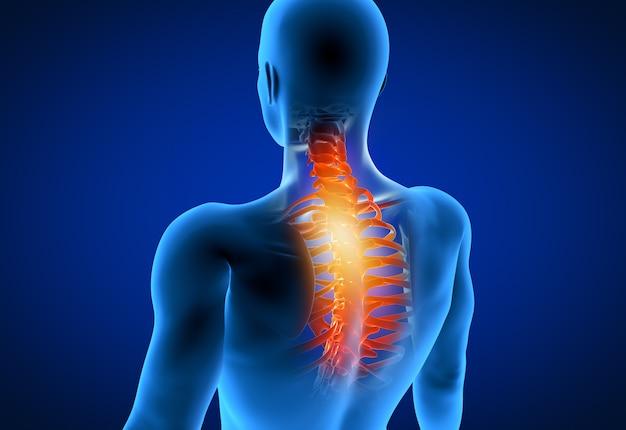 Illustration de rendu 3d d'un homme ayant un cou douloureux
