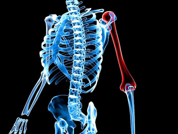 Illustration de rendu 3d d'un squelette avec bras douloureux