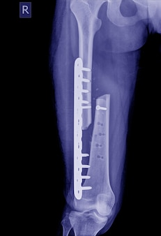 Image aux rayons x de la jambe cassée, image radiographique d'une jambe fracturée avec plaque d'implant et dislocation de la vis
