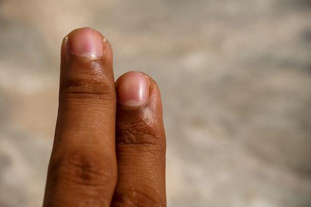 Image de doigts à deux doigts