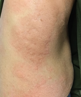 Image en gros plan du corps d'une femelle une piqûre d'insecte avec de graves éruptions cutanées allergiques