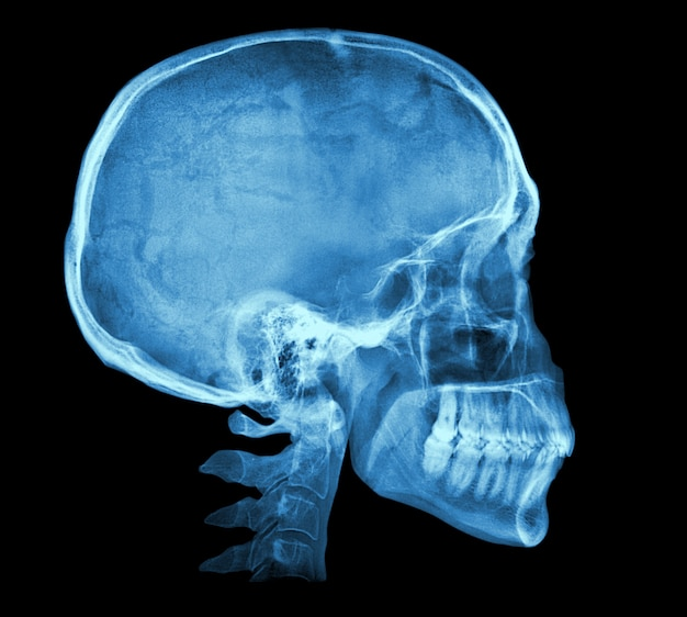 Image radiographique du crâne humain