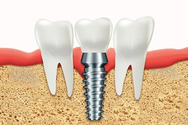 Implant dentaire, tenon gingival en acier inoxydable