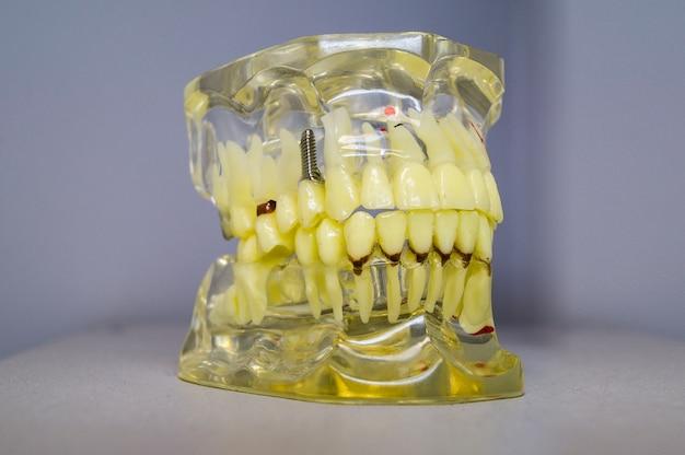 Implants dentaires et dents dans le crâne