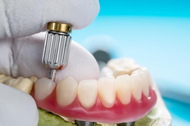 Les implants dentaires ont soutenu la prothèse.