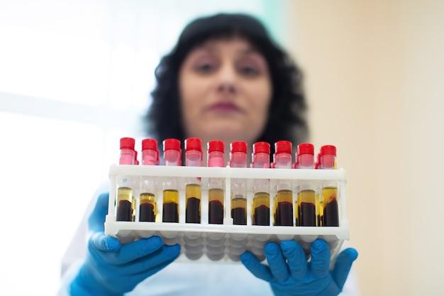 Infirmière avec des analyses de sang. du sang dans des tubes à essai