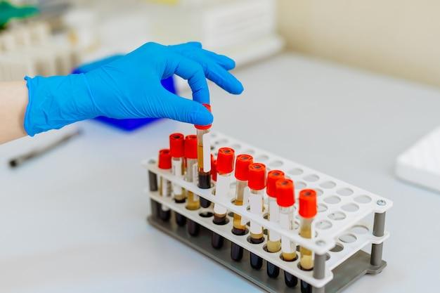 Infirmière une main organise des tubes à essai avec du sang sur un plateau. infection virale. test de pneumonie. identification du covid-19 et du coronavirus. pandémie.