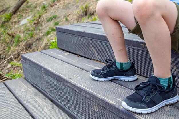 Jambe d'enfant avec des ecchymoses, des blessures. enfants sales pieds avec des rayures.