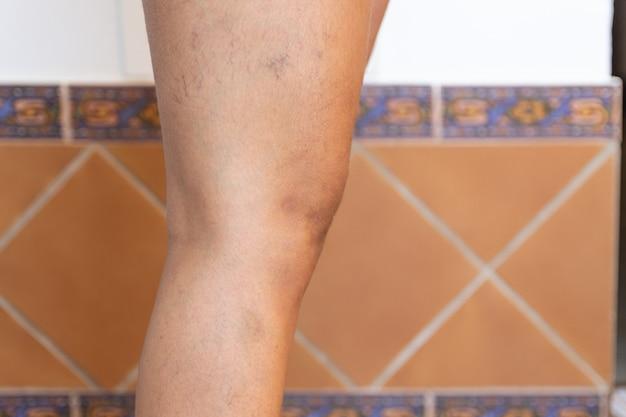 Jambe de femme adulte avec varices