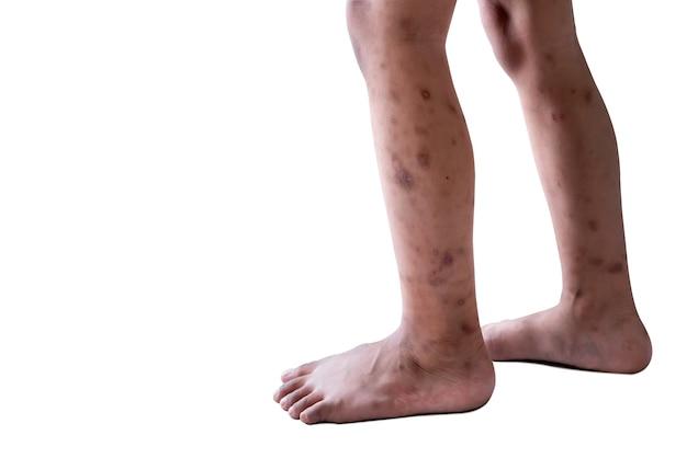 Jambes d'un enfant la maladie de la peau qui est une ampoule rouge et des traces de grattage
