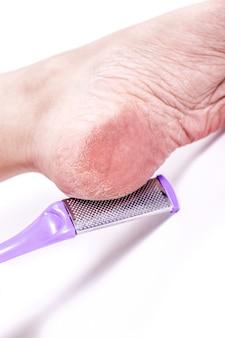 Jambes féminines avec une peau sèche déshydratée trop sèche sur les talons