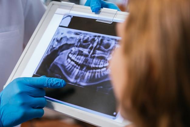 Un jeune dentiste montre une radiographie dentaire à son patient avant une intervention médicale dans les cliniques