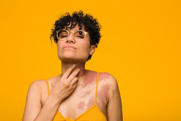 Jeune femme afro-américaine avec une marque de naissance cutanée souffre de douleurs à la gorge en raison d'un virus ou d'une infection.