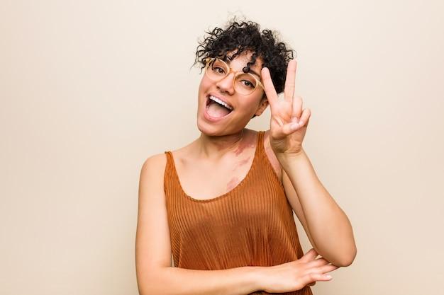 Jeune femme afro-américaine avec la marque de naissance de peau montrant le numéro deux avec les doigts.