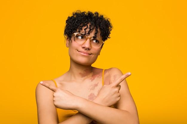 Une jeune femme afro-américaine avec des marques de naissance de la peau pointe de côté, essaie de choisir entre deux options.