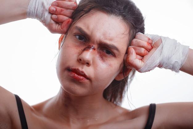 Jeune femme avec des ecchymoses sur le visage victime de violence domestique sur blanc