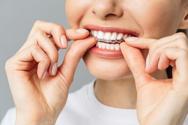 Une jeune femme fait une procédure de blanchiment des dents à domicile avec un plateau de blanchiment avec du gel