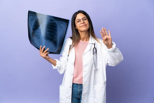 Jeune femme médecin tenant une radiographie heureuse et comptant quatre avec les doigts