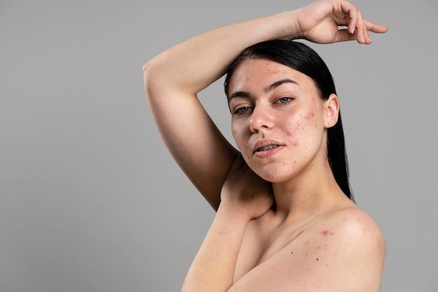 Jeune femme montrant son acné avec confiance