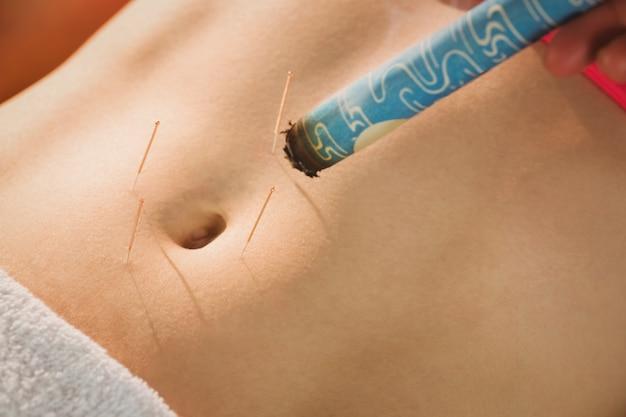 Jeune femme recevant un traitement d'acupuncture