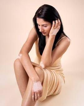 Jeune femme, à, vitiligo, poser