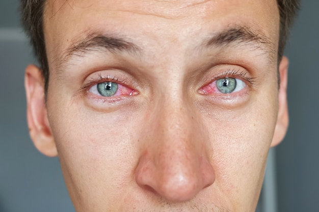 Jeune homme aux yeux rouges