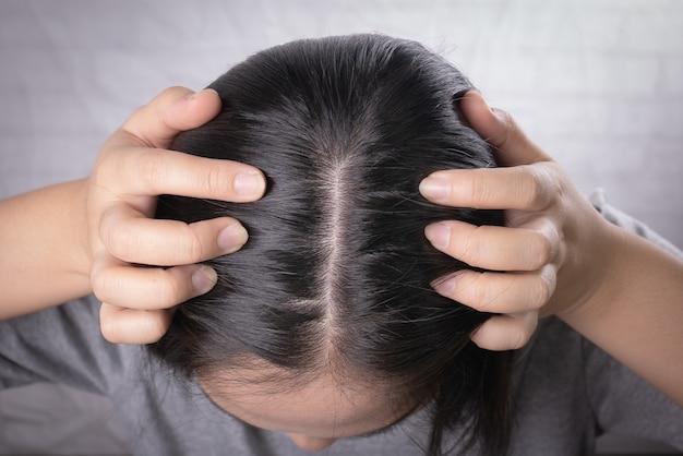 Les jeunes femmes asiatiques s'inquiètent de la perte de cheveux, de la tête chauve et des pellicules.