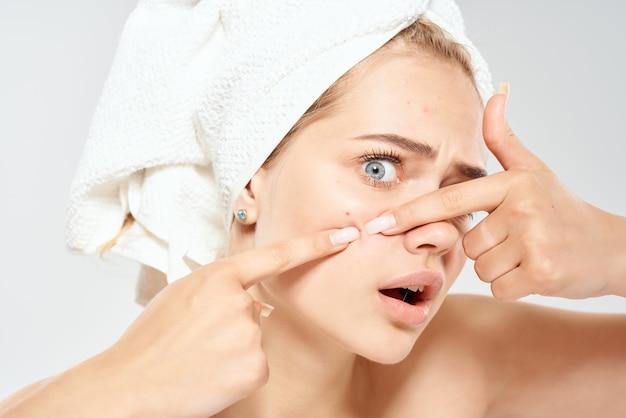 Une jolie femme avec une serviette sur la tête fait sortir des boutons sur son visage des problèmes de soins de la peau