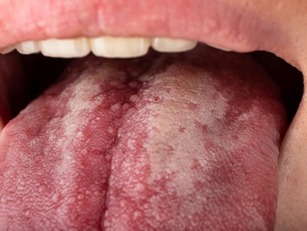 Langue avec stomatite close up cancer buccal