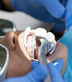 Laser dentaire utilisé sur un patient sur des tissus mous et durs. concept de santé dentaire, de technologie moderne et d'hygiène buccale.