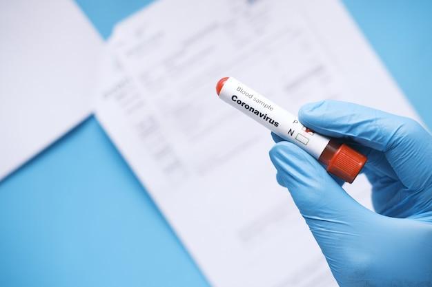 La main dans des gants médicaux bleus tenant le tube à essai de sang et le rapport médical sur la table