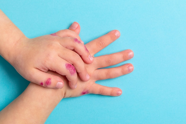 La main des enfants atteints de dermatite. eczéma à portée de main. isolé sur le fond bleu