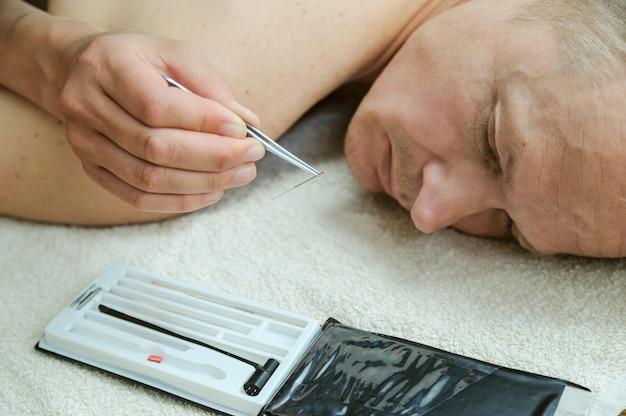 La main d'une femme tient une aiguille d'acupuncture avec une pince à épiler.