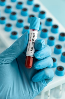 Main avec des gants de protection tenant un échantillon de sang pour le test de covid
